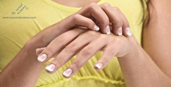 Eczema and allergy